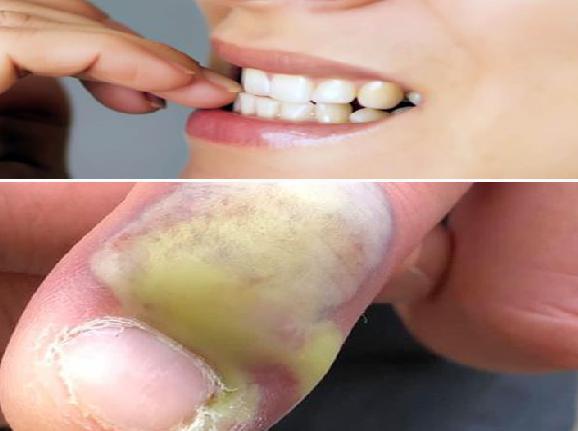 قضم الأظافر عن طريق الأسنان يتسبب فى إجراء عملية جراحية مبدعو مصر